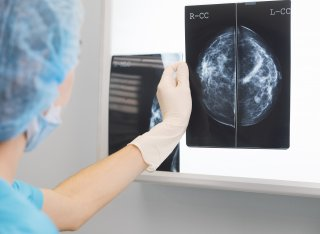Nurse looking at x-ray of head